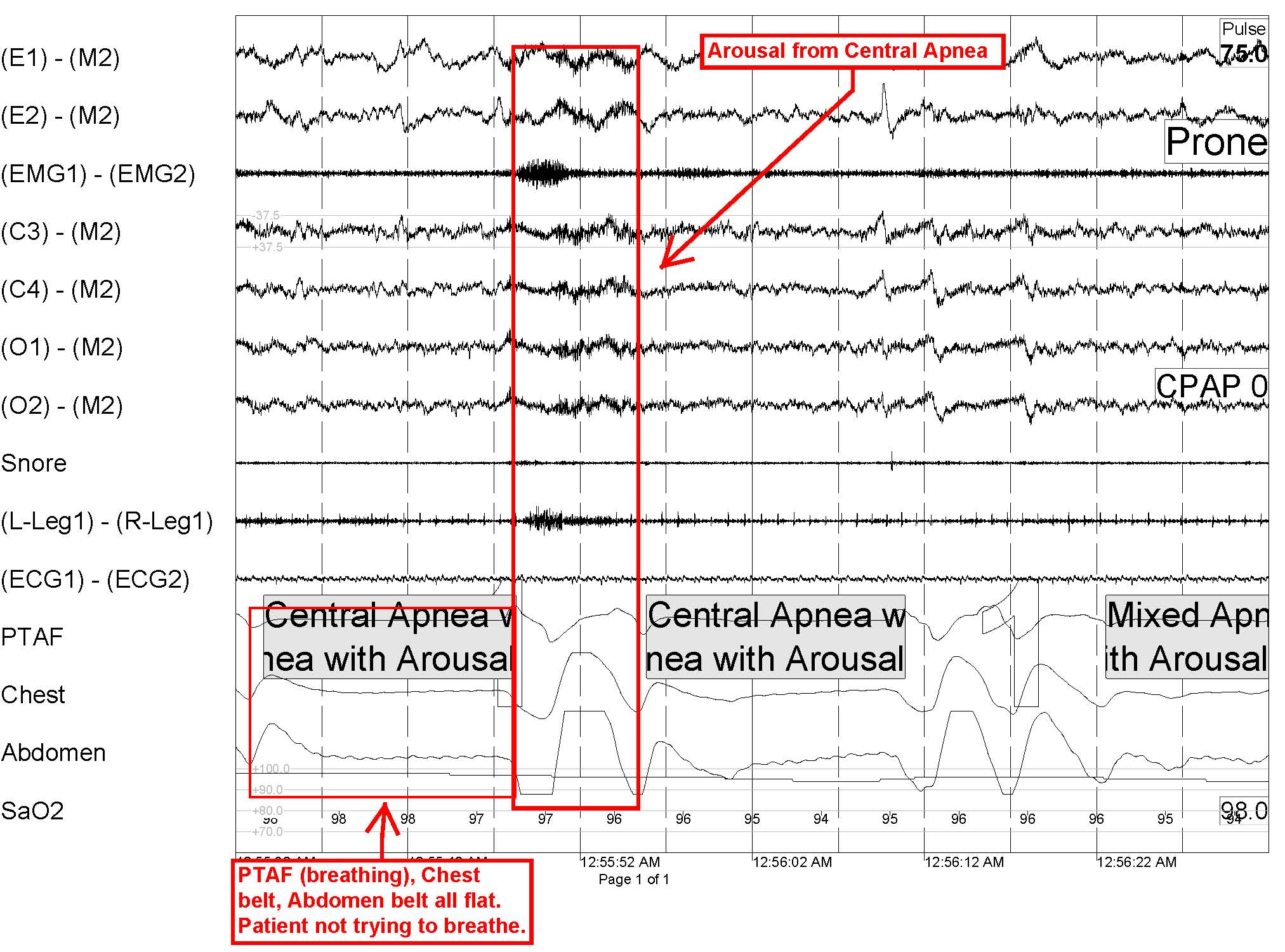 Central Sleep Apnea: Is There More to That Snore