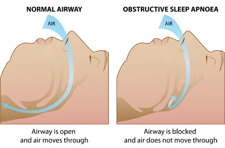 obstructive sleep apnea syndrome pdf