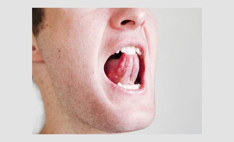 how to keep throat open while singing