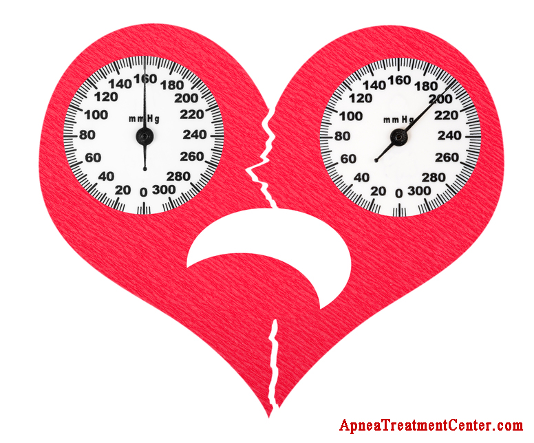 Sleep Apnea and High Blood Pressure: Inevitable But Controllable Too