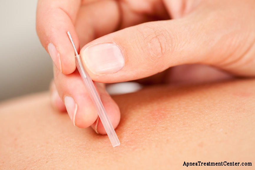 Acupuncture Therapy for Sleep Apnea: Can Prickly Needles Cure My Apnea?