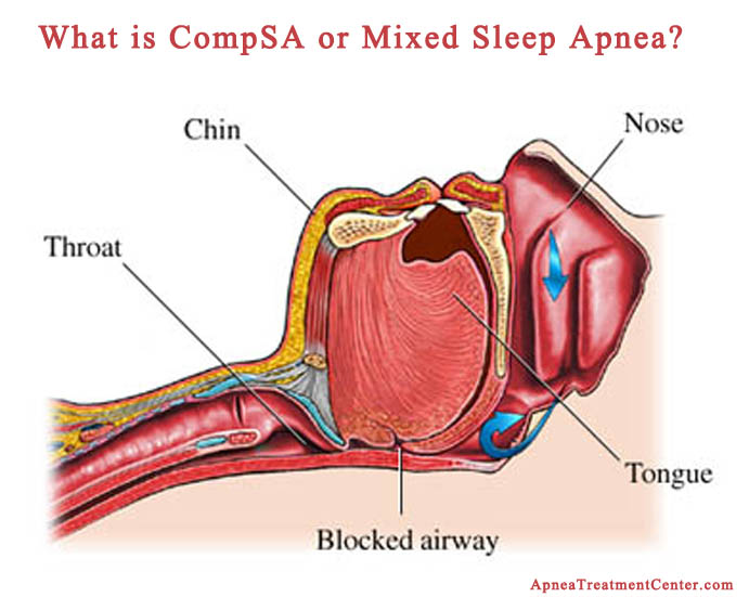 Mixed Or Complex Sleep Apnea The Treatment Emergent