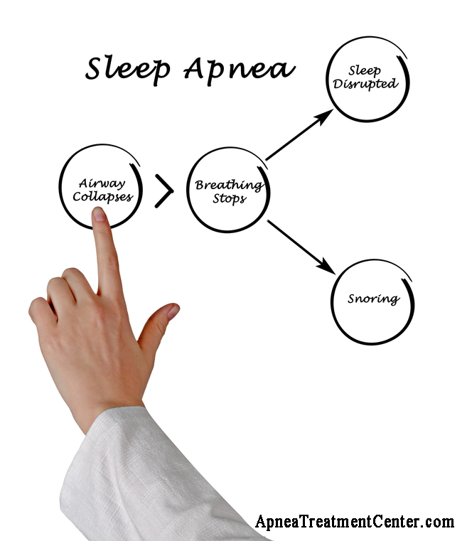 What is Sleep Apnea