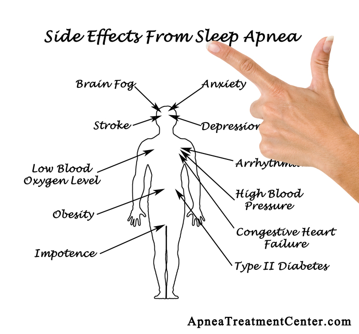 Sleep Apnea Side Effects – Dangerous and Serious