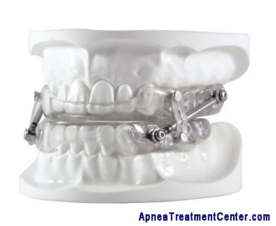 Dental Appliance for Sleep Apnea: Puts the Smile Back On Your Face