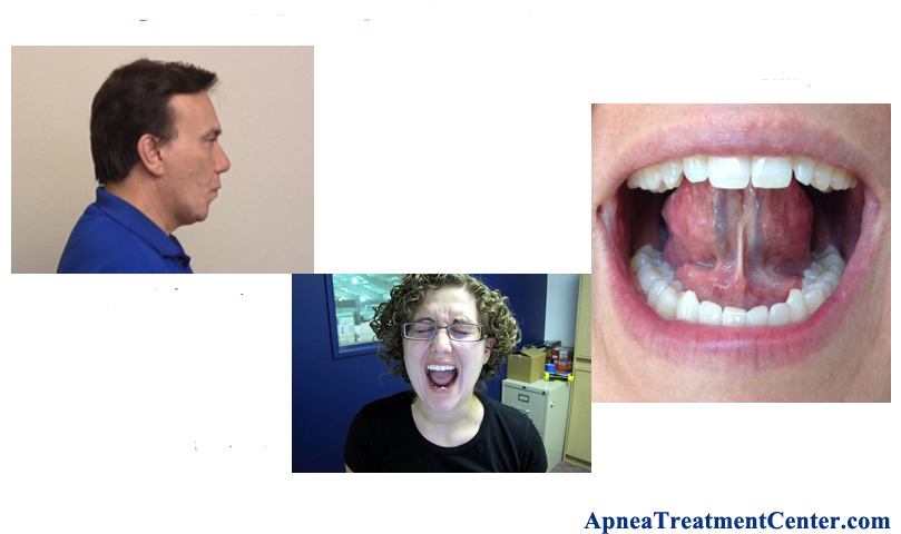 Mouth & Throat Exercises for Sleep Apnea: Try These 4 Simple Exercises
