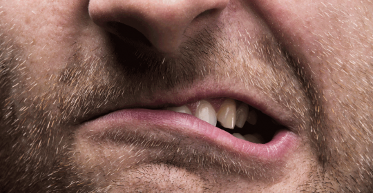 Sleep Bruxism: A Sleep-Related Movement Disorder