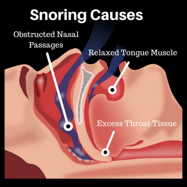The Science Behind Snoring