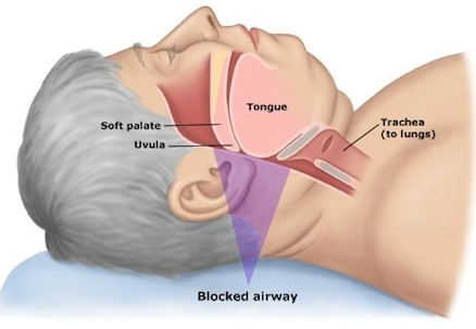 sleep apnea soft palate
